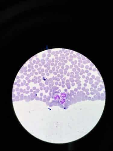 Agranulozytose: Symptome und Behandlung