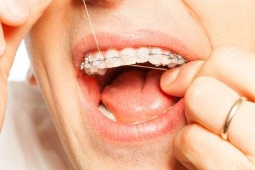 Zahnseide bei einer Zahnspange
