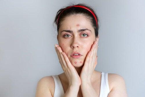 Frau mit Akne