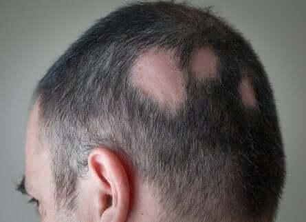Haarausfall auf dem Kopf eines Mannes