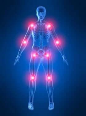 Morbus Paget: Auswirkungen auf die Knochen