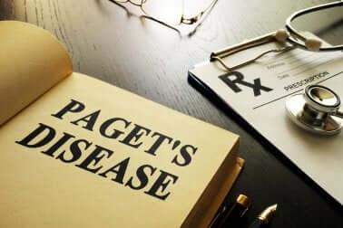 Morbus Paget: Erkrankung der Knochen