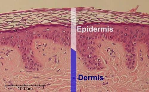 Salicylsäure: Für die Haut gut