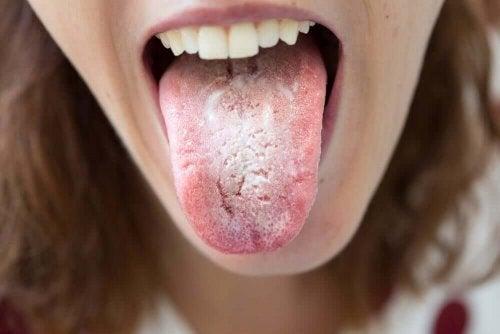 schwarze Punkte auf der Zunge