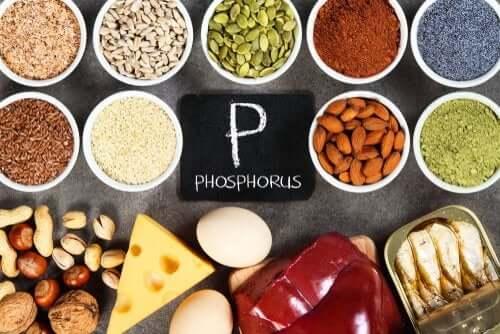 Hyperphosphatämie: erhöhter Phosphatspiegel im Blut