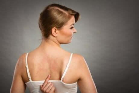 Frau mit Allergie durch Zusatzstoffe