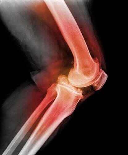 Luxation der Kniescheibe: Welche Ursachen können dazu führen?