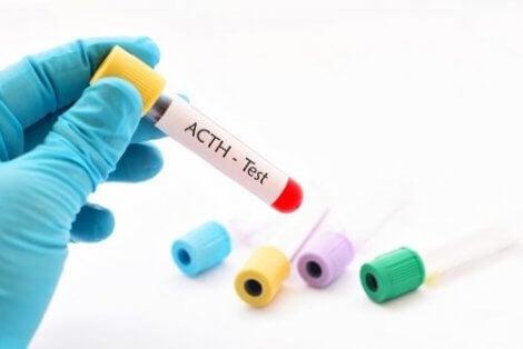 Röhrchen mit Blutprobe zur ACTH-Analyse