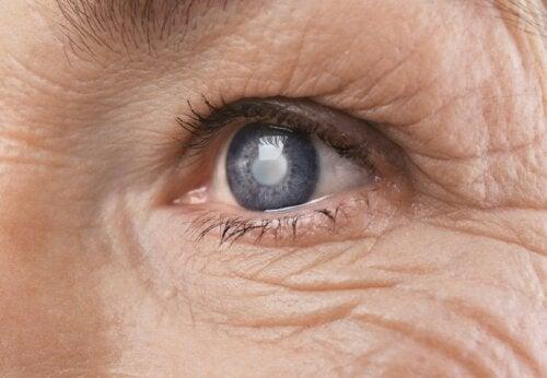 Hyperglykämie: Symptome