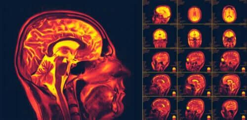 Was bedeutet Neuroplastizität?