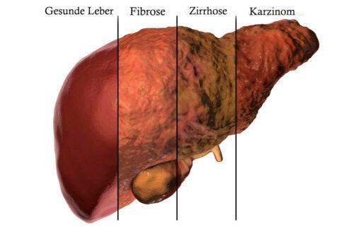 Leberstoffwechsel und Leberkrankheiten