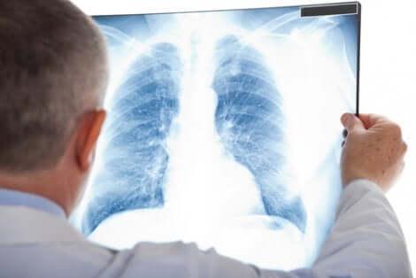 Lungenknoten im Röntgenbild beobachten