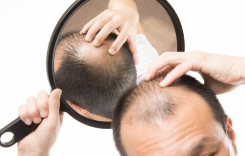Warum kommt es zu Haarausfall? Androgener Haarausfall