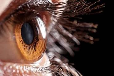 Nahaufnahme von einem Auge mit Keratokonus