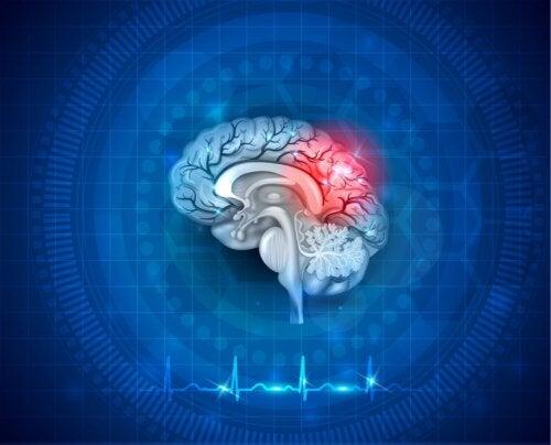 Neuroplastizität: Was ist das?