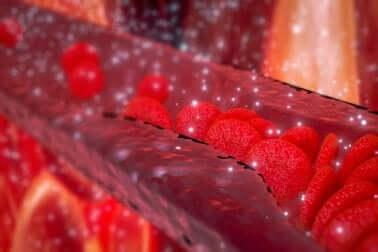 Arterienverkalkung: Behandlung