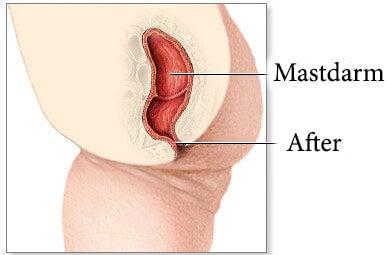 Anoskopie bei Problemem im Bereich des Mastdarms und Afters