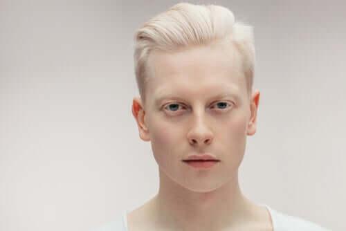 Alles über Menschen mit Albinismus