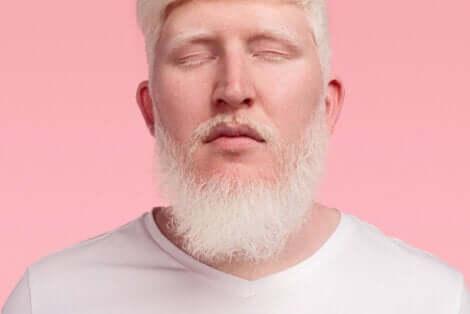 Menschen mit Albinismus