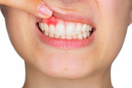 Mundwasser bei Zahnfleischbeschwerden