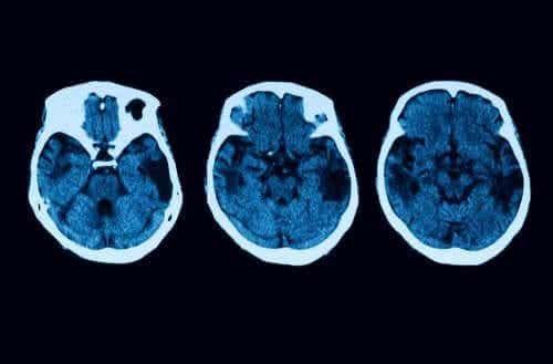 Posteriore kortikale Atrophie: Diagnose und Behandlung