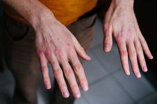 Rissige Hände durch Kälte - was man dagegen tun kann