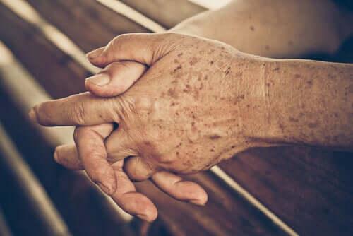 Pflege der Haut im Rentenalter