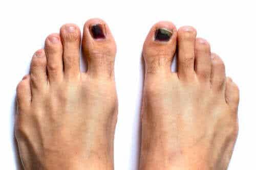 Schwarzer Zehennagel: Ursachen und Behandlung