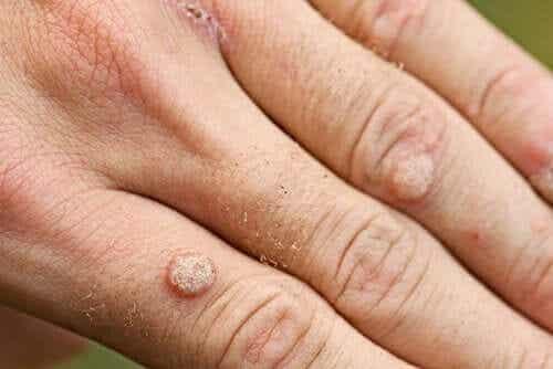Welche Arten von Warzen gibt es und wie werden sie behandelt?