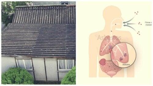 Asbestose durch das Einatmen von Asbeststaub