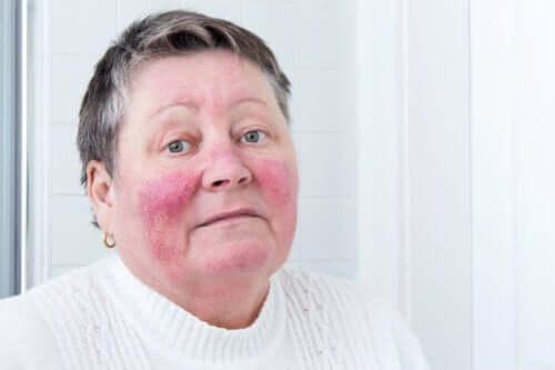 Hauterkrankung Rosazea: Ursachen und Symptome