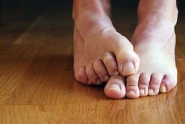 schwarzer Zehennagel: wie vermeiden?