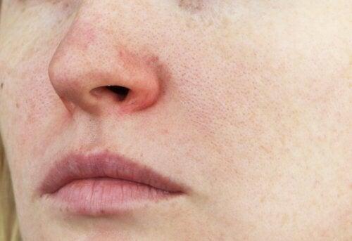 Rote Äderchen im Gesicht: Was ist Couperose?