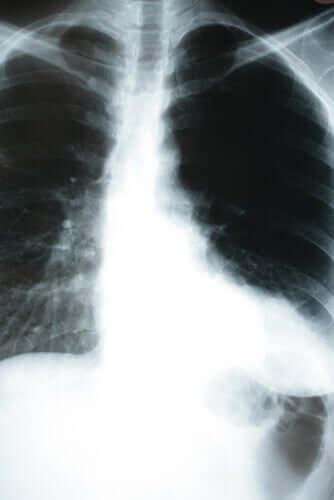 Auswirkungen einer Lungenentzündung auf den Körper