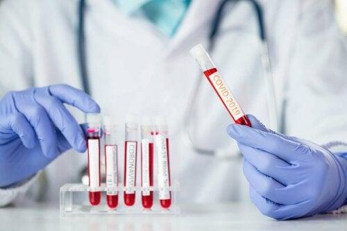 Coronavirus: Welche Rolle spielt die Blutgruppe?