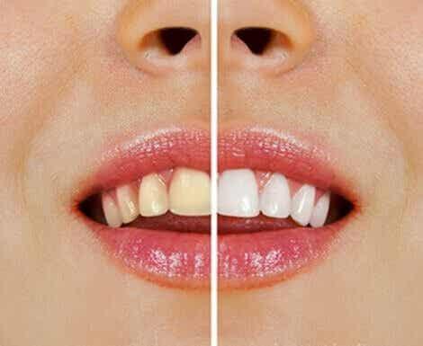 Weißere Zähne mit Naturprodukten