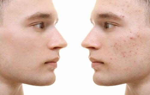 Kurkuma gegen Akne: Wirkung und Verwendung