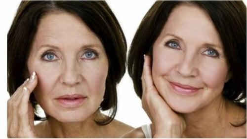 Wechseljahrbeschwerden und Hautprobleme