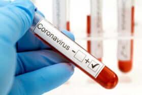 Coronavirus nach der Genesung?