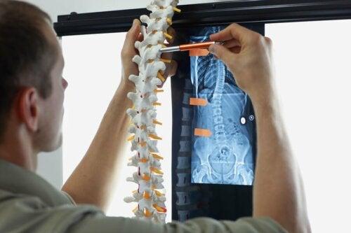 Knochenmetastasen: Symptome und Behandlungsmöglichkeiten