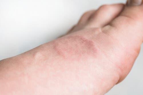 Wissenswertes über die Hauterkrankung Granuloma anulare