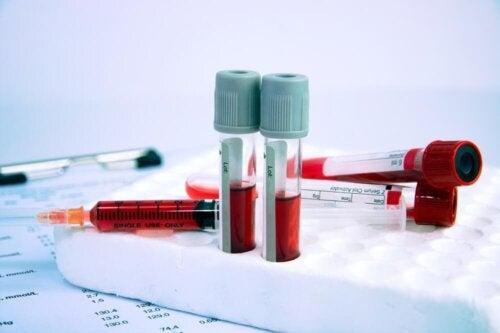 pharmakologische Behandlung von Anämie