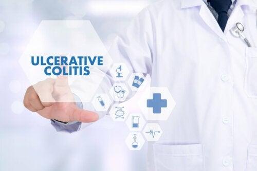 Colitis ulcerosa: 5 Tipps, um akute Schübe zu verhindern