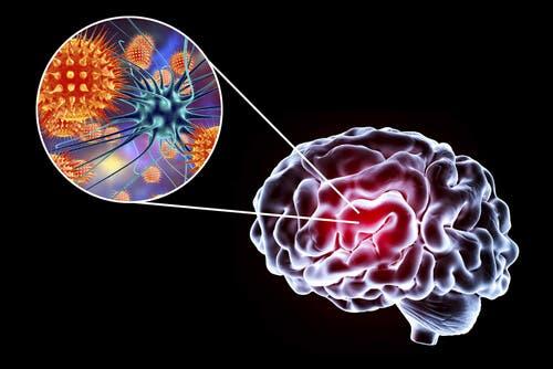 Enzephalitis: Symptome, Ursachen und Behandlung