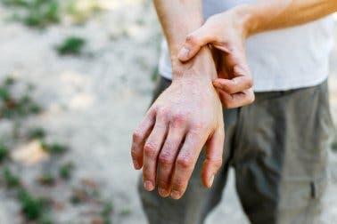 Mann mit Granuloma anulare