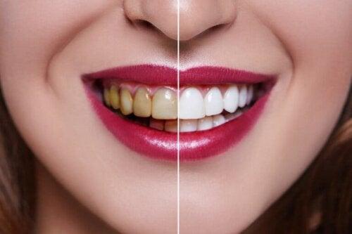 Frau mit hellen und gelblichen Zähnen
