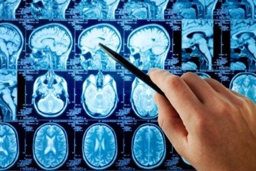 Gehirntumor: Ursachen und Diagnose