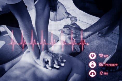 Herzstillstand Reanimation