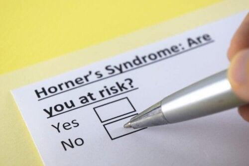 Horner-Syndrom: Was ist das?
