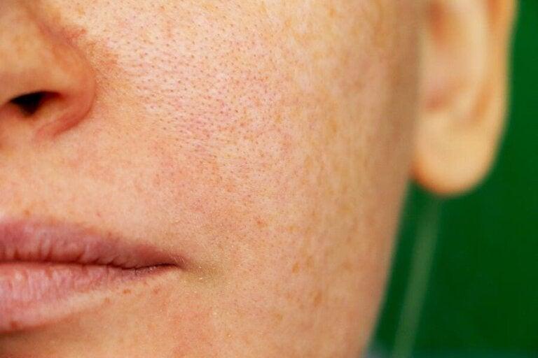 Melasma: 3 Hausmittel gegen Pigmentflecken
